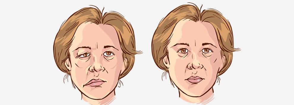 Paralisis facial tratamiento acupuntura malaga