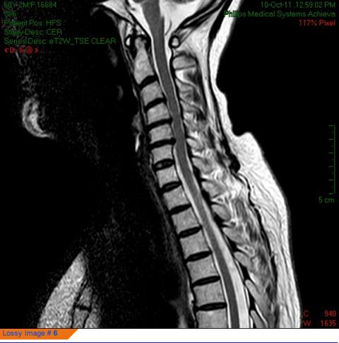 Tratamiento acupuntura malaga en qicenter